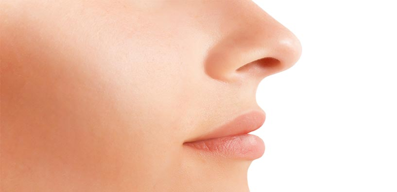 rhinoplasty nose